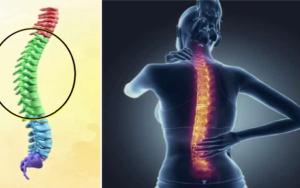 colonne vertébrale et femme souffrant des vertebres dorsales
