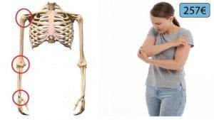 squelette et femme souffrant du coude