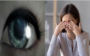 oeil et femme souffrant des yeux