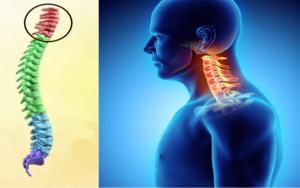colonne vertébrale et homme souffrant des cevicales
